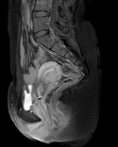 Aici se vede foarte frumos uterul meu retrovers(daca o sa comparati poza cu un desen din acela de la anatomie o sa vedeti)